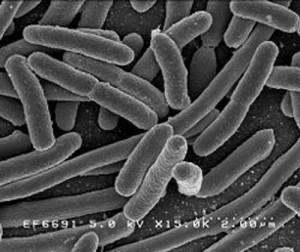 escherichia coli nei bambini e insufficienza renale