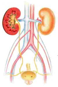 Escherichia coli nelle urine i sintomi peculiari alla diagnosi