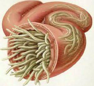 tipi di parassiti intestinali