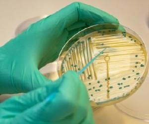 Escherichia coli cistite antibiogramma